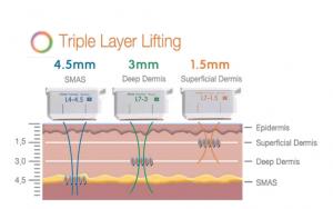 triple layer lifting 4.5mm 3.0mm 1.5mm