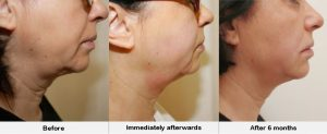 HIFU Facelift Before and After
