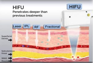 How HIFU works