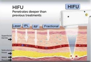 Hifu versus radiofrequency (endymed, pelleve, thermage)