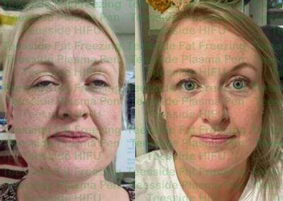 HIFU Face lift before and 6 weeks after