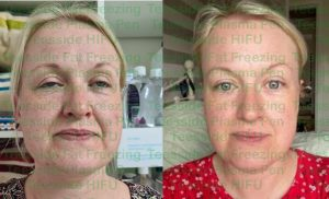 HIFU face lift before and 4 weeks after